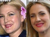 Drew Barrymore Chirurgie