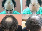 4297 Clinic Bisanga Clinique greffe cheveux photos avant après