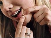 Camoufler boutons cicatrices d'acné