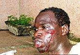 Guinée, campagne second tour présidentielles vire fiasco mort blessés
