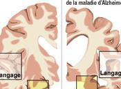 Alzheimer: maladie rapporte gros laboratoires