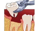 Dent arrachée soins après extraction dentaire
