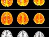 ANXIÉTÉ, dépression: champignons magiques avaient vertus thérapeutiques? PNAS -The British Journal Psychiatry
