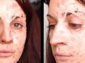 Halloween Make-Up burned face