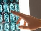 NEURO: coin cerveau reste jeune malgré l'âge International Cognitive Neuroscience Conference