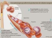 #blinatumomab #leucémielymphoblastique #HSCT #cellulesB Innocuité activité blinatumomab chez patients adultes atteints leucémie lymphoblastique récidivante réfractaire cellules précurseurs étude multicentrique phase simple
