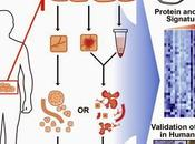 #cancer #adénocarcinome #pancréas #organoïde #souris #homme Modèles d'organoïdes d'adénocarcinome canalaire pancréatique humain murin