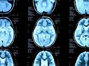 Curcumine épilepsie