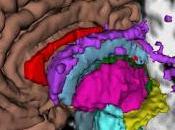 #thelancet #scléroseenplaques #SEP #méthylprednisolone #voireorale #voieintraveineuse Methlyprednisolone versus methylprednisolone voie intraveineuse pour traitement patients atteints sclérose plaques récidivante essai i...