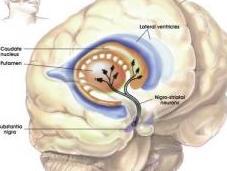 PARKINSON: L'hypothèse d'une surchauffe neurones Current Biology