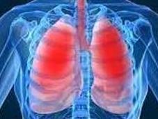 ASTHME: Bloquer ADAM pour éviter crises Journal Clinical Investigation