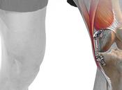 ARTHROSE GENOU: Système Atlas, nouveau dispositif pour faire face Santé Orthopédique