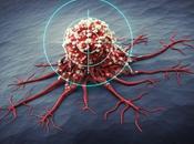 HORLOGE BIOLOGIQUE: remettre l'heure arrête tumeur Biology