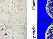 EXERCICE supplémentation L'irisine, elle brûle graisse renforce l'os Bone Research