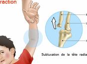 Pronation douloureuse coude causes manœuvre réduction