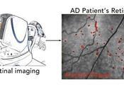 ALZHEIMER L'œil périscope ouvert cerveau