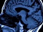 consommation cannabis peut perturber développement cerveau