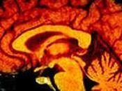 cerveau fuite