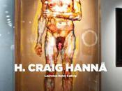 Craig Hanna