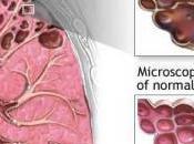 TABAGISME test sanguin détecte l'emphysème bien avant premiers symptômes American Journal Respiratory Critical Care Medicine