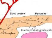 HYPERINSULINISME découverte d'un traitement permet mieux comprendre diabète Diabetes