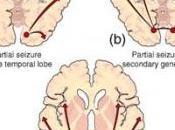 GROSSESSE: ANTIÉPILEPTIQUES associés risque malformations congénitales majeures Lancet Neurology