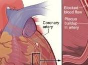 CRISE CARDIAQUE: Eviter décès grâce nouveau médicament British Cardiovascular Society annual scientific Conference