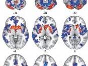 COCAÏNE: anomalies cerveau, cause conséquence? Brain