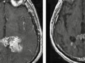 CANCER CERVEAU: espoir avec d'anciens médicaments Cancer Research