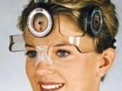 TORTICOLIS OCULAIRE: pour diagnostiquer troubles oculaires Investigative Ophthalmology Visual Science (IOVS)