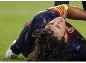Ligue Champions Carles Puyol retourne coude