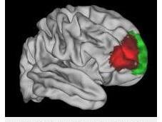 NEURO: Découverte d'une zone cérébrale unique l'Homme Neuron