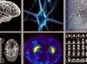 Efficacité sécurité rifampicine dans l'atrophie multisystématisée