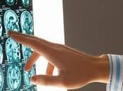 SCLÉROSE plaques: statines efficaces contre l'atrophie cerveau Lancet