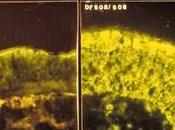 Ataluren pour traitement d'une fibrose kystique mutation non-sens essai phase randomisé, double aveugle contrôlé placebo