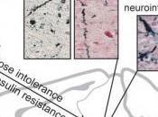 PARKINSON: alimentation riche graisses accélère l'apparition maladie Journal Neurochemistry