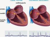 #thelancet #fibrillationauriculaire #insuffisancecardiaque #digoxine #rivaroxaban Administration Digoxine chez patients atteints fibrillation auriculaire séquelles cardiovasculaires analyse rétrospective l'effet prise monoquotid...