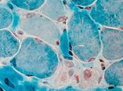 #thelancet #dystrophiemusculairededuchenne #idebenone #corticostéroïdes Efficacité l'idebenone fonction respiratoire chez patients atteints dystrophie musculaire Duchenne prenant glucocorticoïdes (DELOS) étude phase 3...