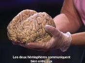 Tedx Etudier propre cerveau plein