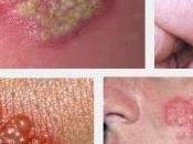 obat herpes biar cepat kering