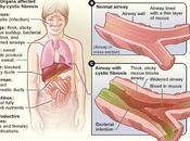 #thelancetdiabetesandendocrinology #diabète #fibrosekystique #repaglinide #insuline Repaglinide versus insuline chez patients atteints fibrose kystique, nouvellement diagnostiqués d'un diabète étude multicentrique, ouverte, randomisée