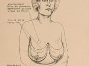 implants mammaires, histoire d'une intervention