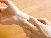 obat untuk herpes tangan