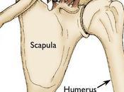 Fractures clavicule chez l'enfant