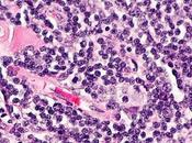 #thelancetoncology #lymphomefolliculaire #immunochimiothérapie Valeur pronostique réponse d'induction mesurée après immunochimiothérapie première ligne pour traitement d'un lymphome folliculaire (GALLIUM) analyse secondaire d'...
