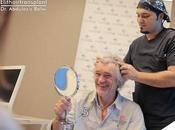 greffe cheveux Turquie solution facile indolore