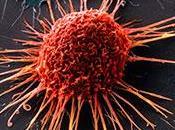 #thelancet #cancerducoldel'utérus #radiochimiothérapie #bevacizumab Cancer l'utérus