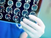 Comment réparer cerveau vision
