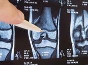 ARTHROSE GENOU thérapie cellulaire répare cartilage